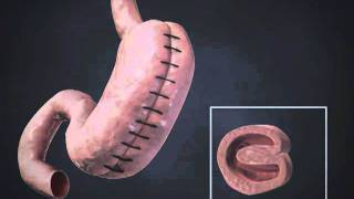 getlinkyoutube.com-Gastric Sleeve Plication, Total Gastric Vertical Plication, Laparoscopic Greater Curvature Plication