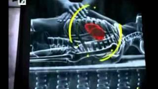 Especial MTV: La misteriosa muerte del rey del pop