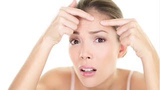 How to Prevent Pimples Naturally