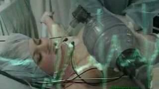 getlinkyoutube.com-Surgery