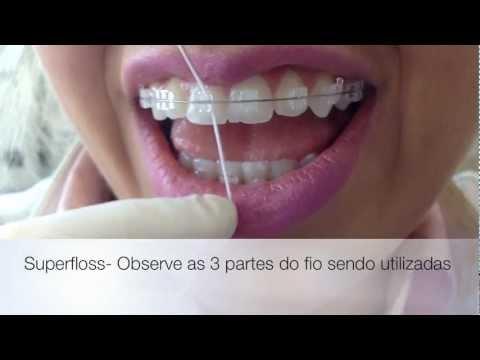 Uso do Fio Dental no Aparelho Ortodôntico