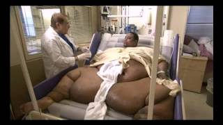 getlinkyoutube.com-Here is the World Fattest person