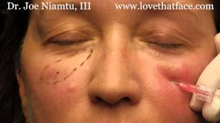 getlinkyoutube.com-5 minute cheeks by Dr. Joe Niamtu, III