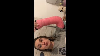 I BROKE MY ARM ?!?!