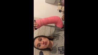 I BROKE MY ARM ?!?!