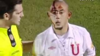 getlinkyoutube.com-Jogador tem rosto pisoteado Newell's Old Boys x  LDU Copa Sulamericana 02/11/2010