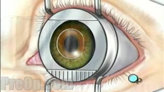 Miyop, Hipermetrop, Astigmat, Nedir, Lazer Göz Ameliyatı, Nasıl Yapılır?