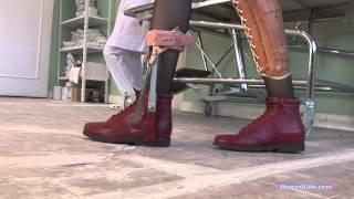 getlinkyoutube.com-AFO brace and knee splint