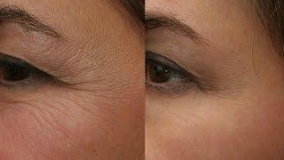 getlinkyoutube.com-Reduce WRINKLES naturally   Ayurvedic home remedy