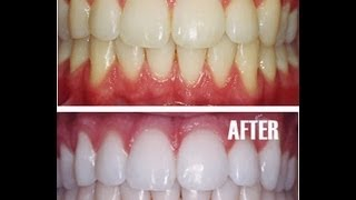 getlinkyoutube.com-Teeth Whitening at Home with Baking Soda - Amazing Results!