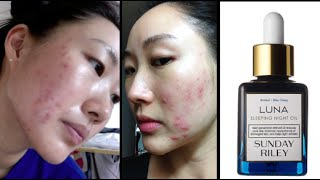 getlinkyoutube.com-My acne history + Sunday Riley Luna sleeping night oil | Jenn Rogers