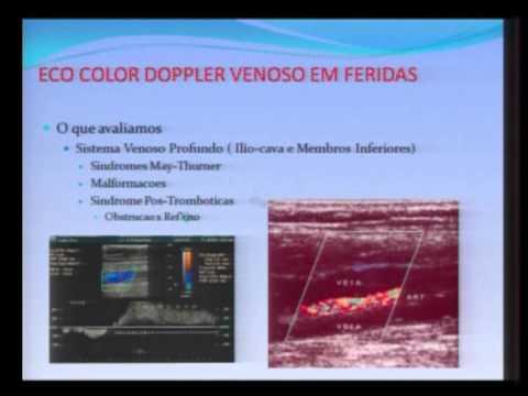 Ecocolor-Doppler: úlcera venosa ou arterial?