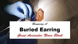 getlinkyoutube.com-Removing a Buried Earring