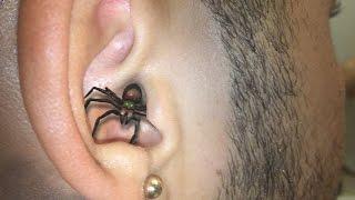 getlinkyoutube.com-SPIDER IN EAR BITE