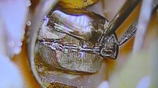 getlinkyoutube.com-保険の銀歯を取り、歯垢・プラークを顕微鏡で見る!渋谷区恵比寿
