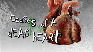 getlinkyoutube.com-Causes of a DEAD HEART - Powerful Reminder