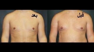 طريقة سهلة للتخلص من بروز الثدي