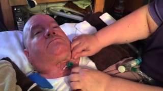 getlinkyoutube.com-Doug's tracheostomy tube change