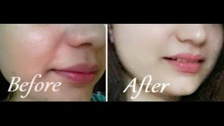 getlinkyoutube.com-How to Remove Sun Tan From Your Face & Neck Instantly
