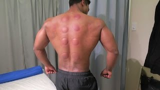 getlinkyoutube.com-Chinese Cupping Therapy - Does It Hurt?