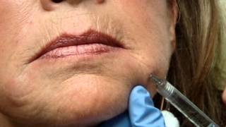 getlinkyoutube.com-Juvederm Injection to Drool Groove