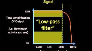 getlinkyoutube.com-5   Technical Issues in EEG