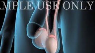 Medical Animation: Testicular Cancer