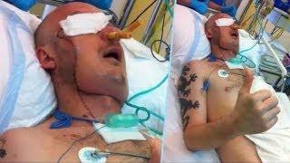 getlinkyoutube.com-顔面に皮膚移植 第二の人生