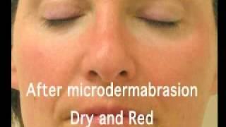getlinkyoutube.com-Hydra-Facial Treatment At Universal Laser Center