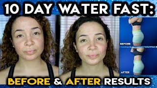 getlinkyoutube.com-10 DAY WATER FAST: BEFORE & AFTER RESULTS