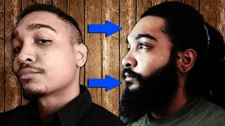 getlinkyoutube.com-24 Men Who Grew Beards  Using Minoxidil