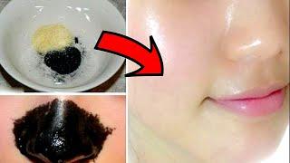 getlinkyoutube.com-МАСКА С УГЛЁМ И ЖЕЛАТИНОМ/МОЙ ОПЫТ