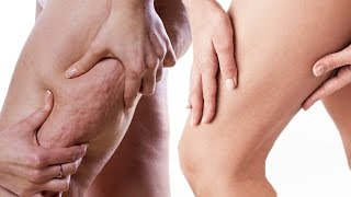 getlinkyoutube.com-Start Treating Your Cellulite Now -- Here's How!