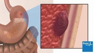 getlinkyoutube.com-How a peptic ulcer develops