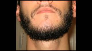 minoxidil for beards Before and after
