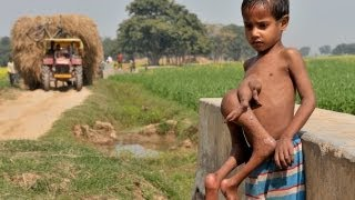 The Boy with 8 Limbs in India