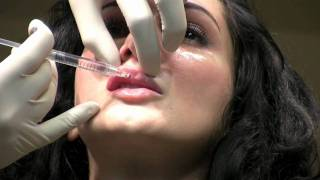 getlinkyoutube.com-Juvederm Ultra XC Lip Augmentation Filler Injection in Washington DC