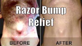 getlinkyoutube.com-ASPIRIN RAZOR BUMP RELIEF | Cheap Tip #8