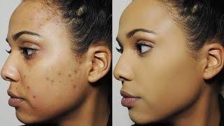 getlinkyoutube.com-How I Cover Dark Spots & Acne Scars | Ashley Bond Beauty