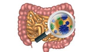 getlinkyoutube.com-6 Steps to Heal Leaky Gut and Autoimmune Disease Naturally