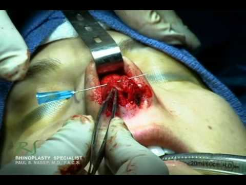 Or Video Footage: Inside A Rhinoplasty Surgery