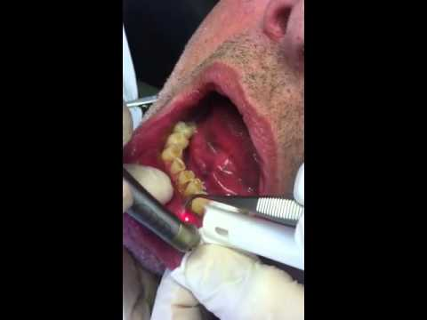 Fibroma removal with Waterlase laser