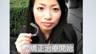 getlinkyoutube.com-インビザライン マウスピース矯正説明 東京/本郷さくら矯正歯科