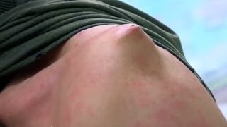 getlinkyoutube.com-Mountain Biking Mishap - Bizarre ER