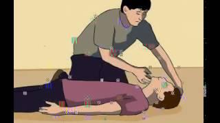 getlinkyoutube.com-Langkah - Langkah CPR/RJP Atau Cara Melakukan CPR/RJP