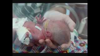 Baby born at 27 weeks - Charlotte's First Year