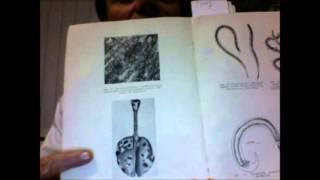getlinkyoutube.com-Как удалить глисты, паразитов? Глисты, паразиты, гельминты на фото! Как избавиться от паразитов?