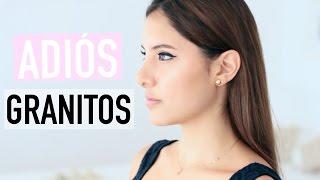 getlinkyoutube.com-CÓMO ME LIBRÉ DEL ACNÉ PARA SIEMPRE | Valeria Basurco