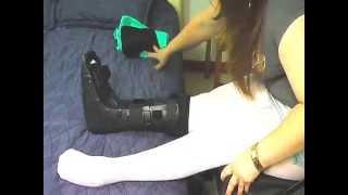 getlinkyoutube.com-paraplegic lunas deformed foot orthotic mini