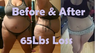 getlinkyoutube.com-3.5 Months Post Op VSG - Before and After Pics
